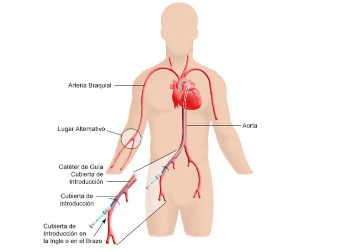 que es el cateterismo cardiaco